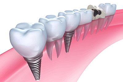 矯正歯科・インプラント