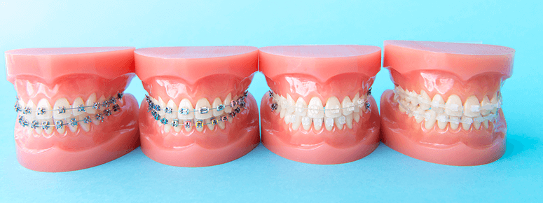 当院の矯正歯科・インプラント